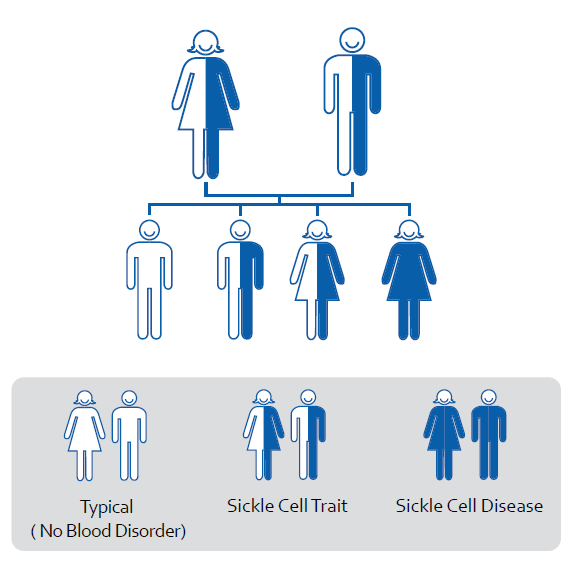 a research on the inherited sickle cell disease Sickle cell disease  sickle cell disease is inherited in an autosomal recessive pattern  require further research to determine their effectiveness.
